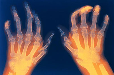 Numeals arthritis